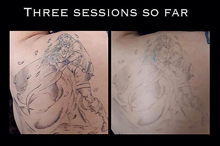 Blank-Canvas-Lasers-Limited-Tattoo-Removal-Southend4