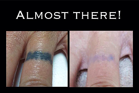 Blank-Canvas-Lasers-Limited-Tattoo-Removal-Southend5