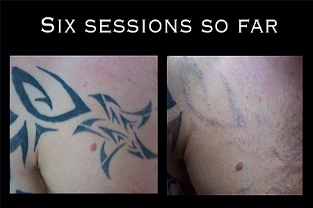 Blank-Canvas-Lasers-Limited-Tattoo-Removal-Southend7
