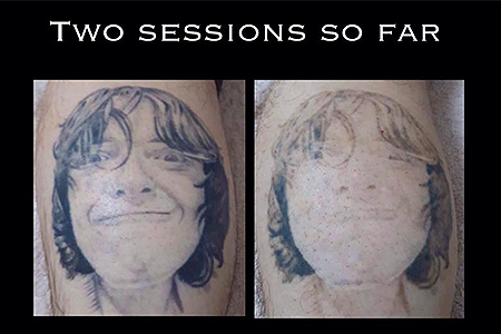 Blank-Canvas-Lasers-Limited-Tattoo-Removal-Southend8